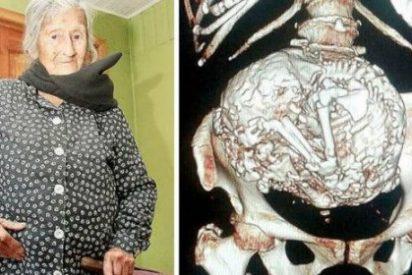 A esta anciana de 109 años que tiene una momia en el vientre le han dicho... ¡que está embarazada!