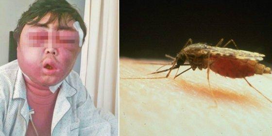 El tipo lleva dos meses con la cara como un globo porque le picó un mosquito repelente en el trabajo