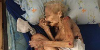 La dantesca foto de una anciana a quien su hijo y nuera han dejado morir de hambre... ¡en España!