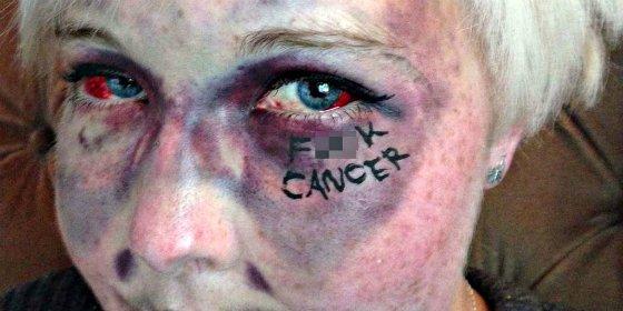 Los 12 síntomas que nos avisan de un cáncer