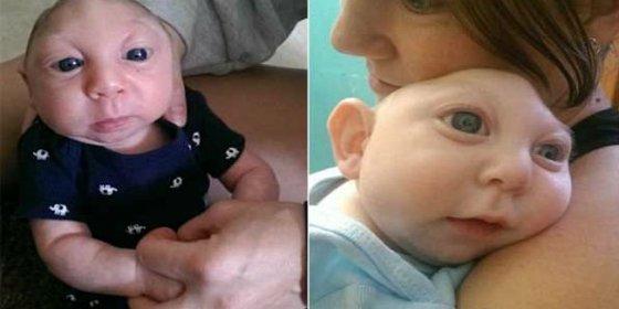 [Vídeo] El niño que sobrevive sin parte del cerebro y de su cráneo