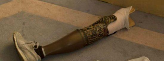 Roban una pierna que iba a ser donada por culpa de unos zampabollos