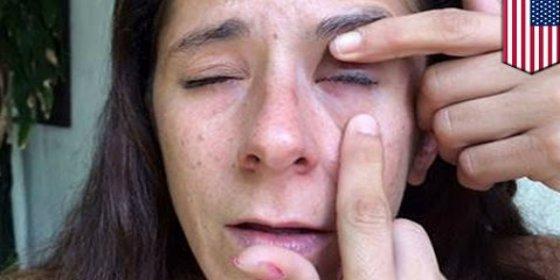 Se le queda el ojo pegado con super glue 9 días por culpa de un cegato