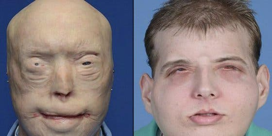 El increíble trasplante de cara al bombero que se quemó en un rescate