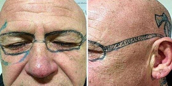 El tipo lleva dos años con unas gafas tatuadas en la cara tras una juerga