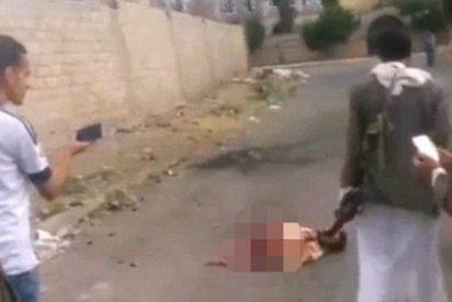 """El suicida del EI que sobrevive con solo medio cuerpo: """"¡Oh, Alá!"""""""