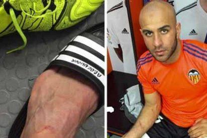 Así le dejó el tobillo Luis Suárez a Abdennour