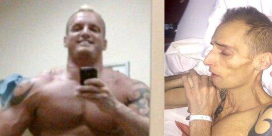 El hombre que ha muerto de cáncer por querer presumir de músculos