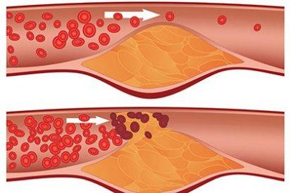 ¿Sábes cómo bajar el colesterol malo en tan solo tres pasos?
