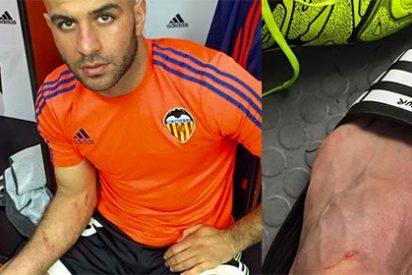 Luis Suárez dejó hecho un 'Ecce Homo' a Abdennour