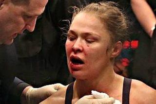 Ronda Rousey: «Pasarán meses antes de que pueda comer una manzana»