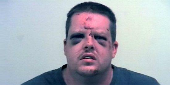El violador al que una brava mujer ha dejado hecho todo un Frankenstein... por meterle la lengua