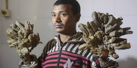 El increíble caso del 'hombre árbol' que tiene ramas en las manos y los pies