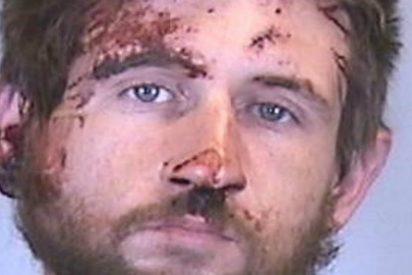 Así le parte la cara un boxeador al drogota que atraca una farmacia