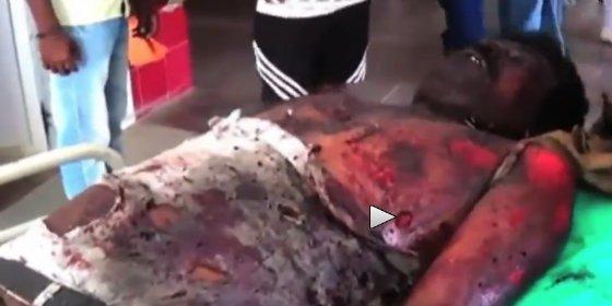 [Vídeo sin censura] El chófer al que ha matado un meteorito en la universidad