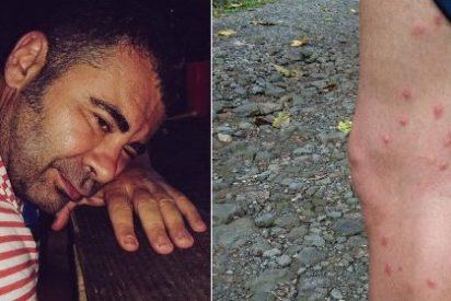 """Jorge Javier Vázquez, """"masacrado"""" por los mosquitos en su aventura con Calleja"""