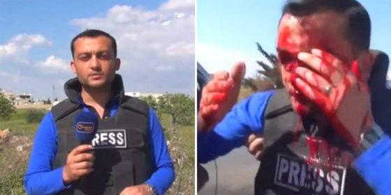 Así le explota una bomba en la cara al periodista durante un reportaje en Siria