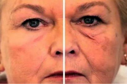 Crean una piel artificial que elimina arrugas y protege del sol