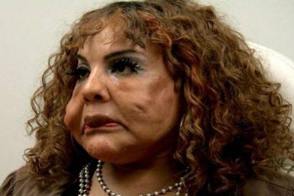 Un falso cirujano le inyectó cemento en la cara y la dejó hecha un cromo