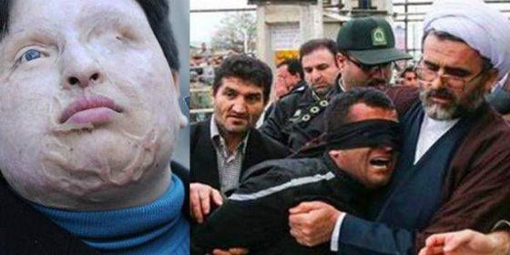 El prisionero tuerto a quien dejarán ciego con ácido los ayatollahs iraníes