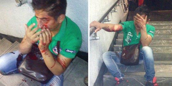 [VÍDEO] La mujer que deja sangrando al tipo que le mete mano en el metro
