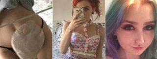 Una adolescente revela en Facebook cómo vive con su bolsa de ileostomía