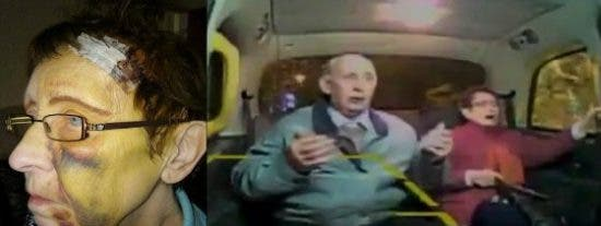 [VÍDEO] El ladrillazo que le rompe el cráneo a una jubilada que iba en taxi