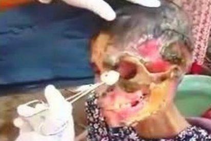 Estos son los efectos del 'krokodil': la droga que te convierte en un zombi comiéndote vivo