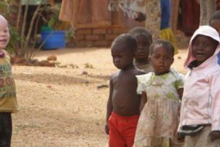 Caza de albinos en Malawi