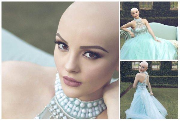 """Andrea Salazar: """"El cáncer no me impide ser una princesa"""""""