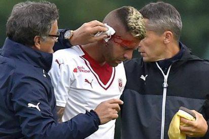 El debut más doloroso de un futbolista: ¡Pierde media oreja en pleno partido!