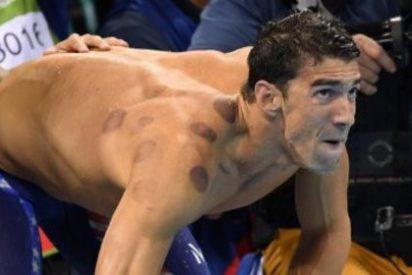 Resuelto el misterio de los extraños círculos que Michael Phelps tiene en la espalda