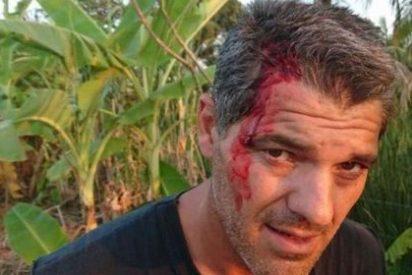 Sangre y dolor: la terrorífica mordedura de una pitón a Frank Cuesta