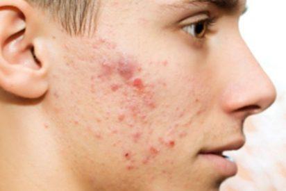 Las bacterias intestinales podrían prevenir y revertir las alergias alimentarias