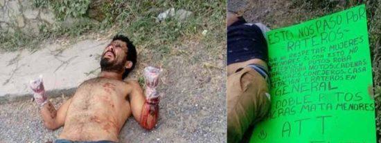 México: Así se retuercen de dolor los ladrones mutilados por el grupo 'Antirratas'