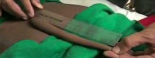 El vídeo del joven indio al que le cortan un rabo de 18 centímetros