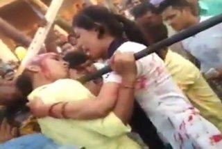 El aterrador vídeo de la chica que pierde su cuero cabelludo haciéndose una selfi