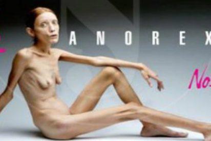 Con 29 años y 31 kilos de peso, 'autorizada a morir de hambre' por anorexia severa