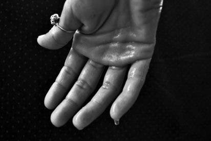 Remedios naturales efectivos para manos sudorosas
