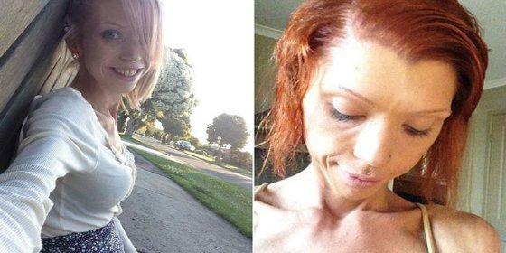 Sufre anorexia porque su novio quiere que se parezca a una actriz porno