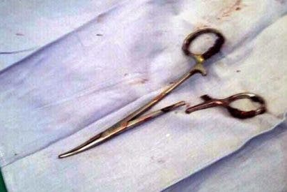 El hombre que vivió 18 años con unas tijeras de 15 centímetros en el estómago
