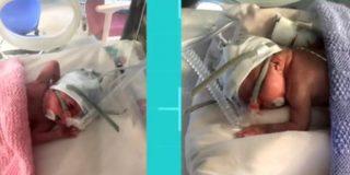 Las gemelas prematuras escocesas que nacieron más de 3 meses antes y lograron sobrevivir