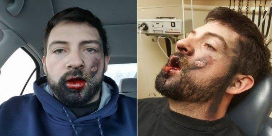 Le explota un cigarrillo electrónico y se queda con la cara destrozada y sin 7 dientes