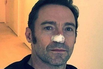 Así es el cáncer de piel que sufre el actor Hugh Jackman