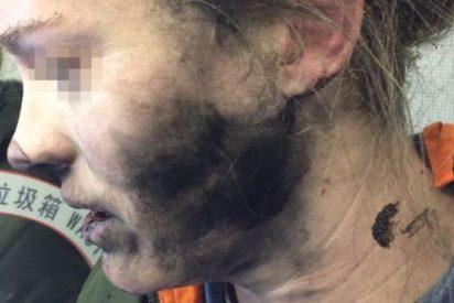 Unos auriculares le explotaron en la cara a una mujer en pleno vuelo