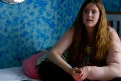 El extraño caso de la niña a la que su brazo izquierdo no le para de crecer