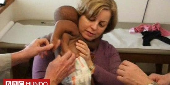 Salvan la vida a una bebé al extirparle a su gemelo parasitario de la espalda