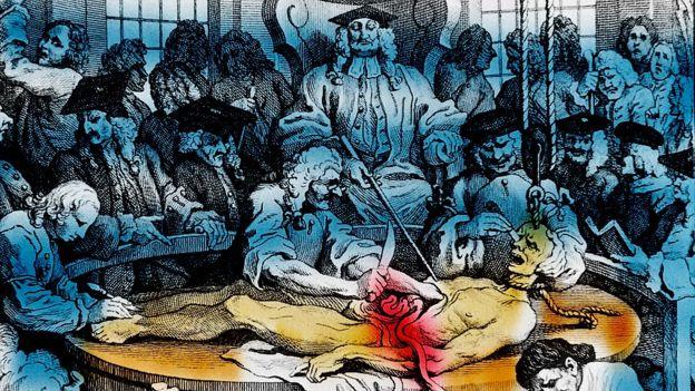 ¿Por qué un científico italiano le insertó una pila en el recto a un condenado a muerte?