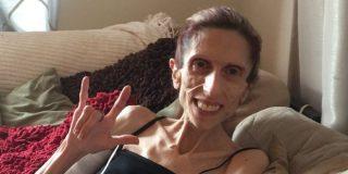 El increíble caso de esta mujer que pesa 20 kilos y sigue viva
