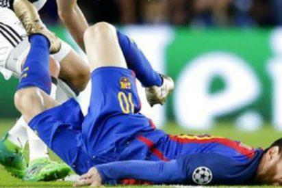 Así le quedó el ojo a Messi tras la dura caída que sufrió en el partido ante Juventus